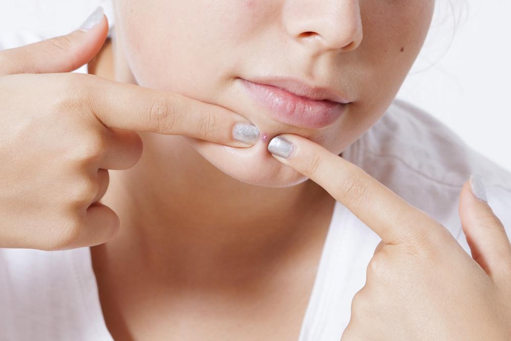 「ニキビかさぶた剥がすと雑菌が侵入してさらに悪化も考えられる?」の画像検索結果