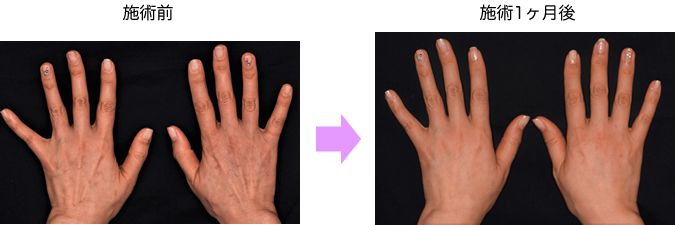 hand_mt_sample004.png