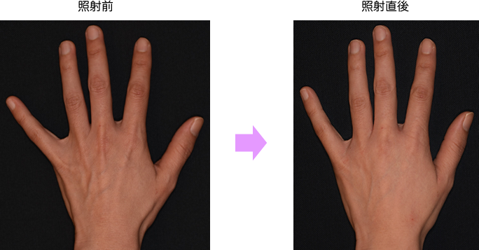 hand_oono01.png