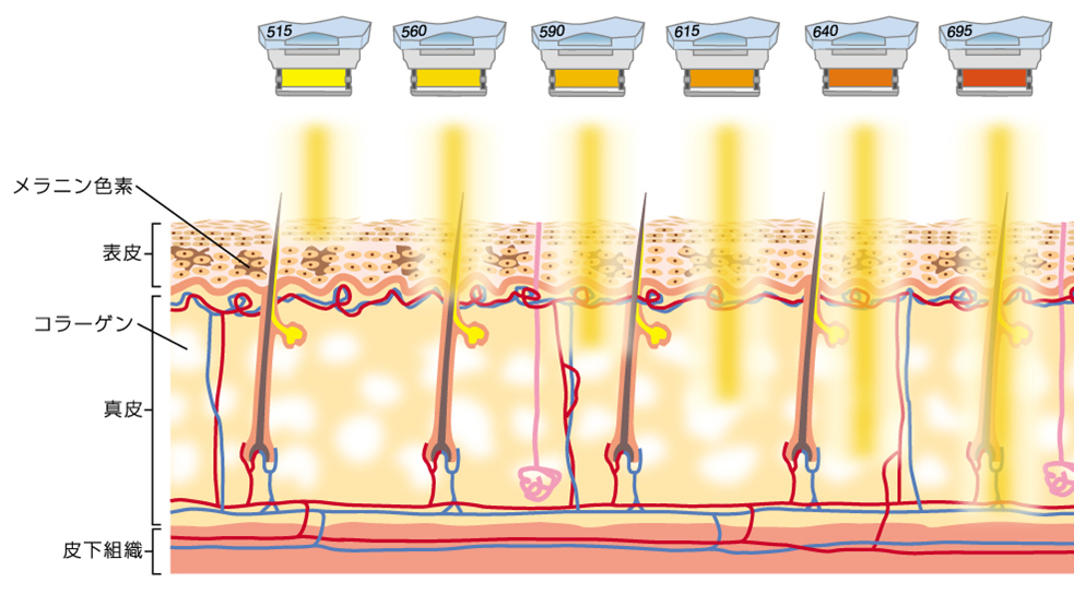 フォトフェイシャルM22(光治療・IPL)の効果と特徴